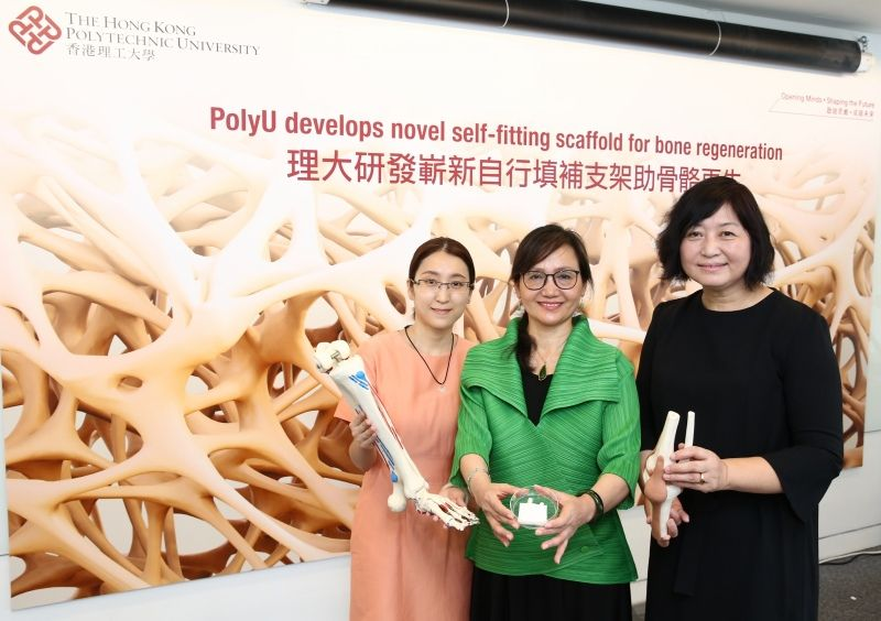PolyU researchers have developed a novel self-fitting scaffold.