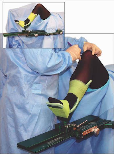 IMP's De Mayo V2 E™ Knee Positioner