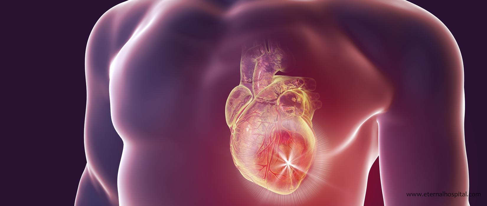 Heart Attack Treatment