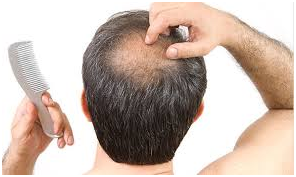 Reason for Hair Loss