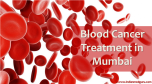 Best Medical Blood Cancer Treatment in Mumbai