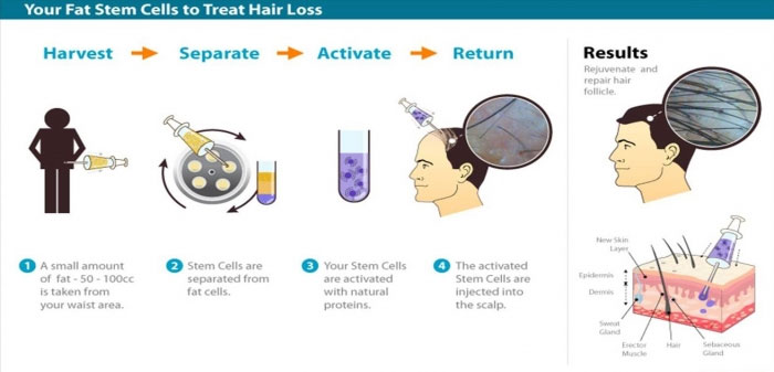 Adult Adipose Derived Stem Cell Treatment For Hair Loss The Hair