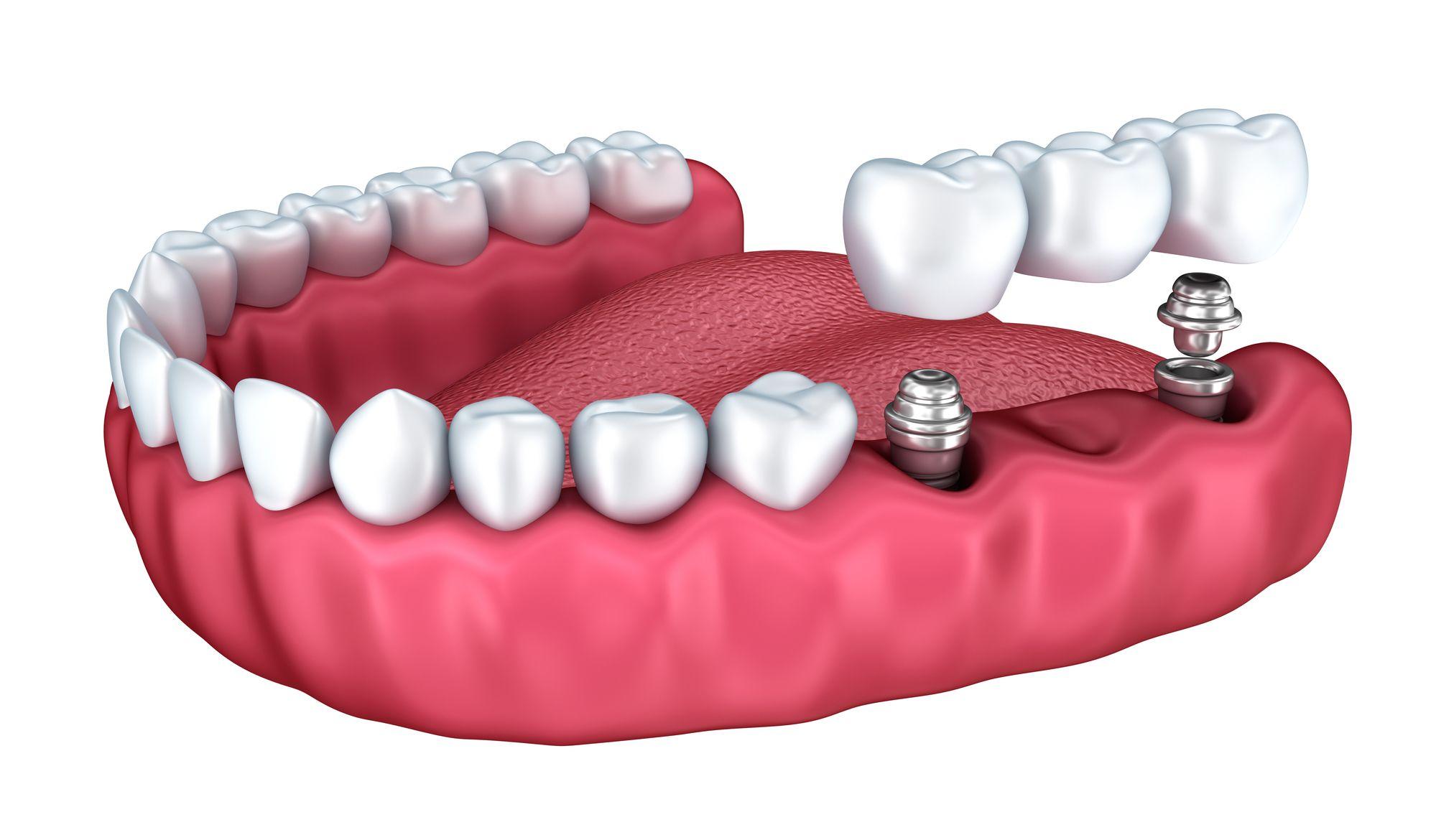 Ferber Dental Group offers high-quality, custom dental bridges in Boynton Beach.