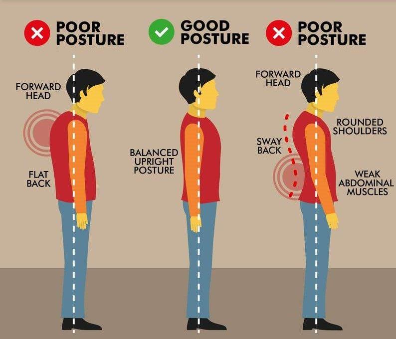 Good Posture vs Bad Posture Freehold Chiropractor