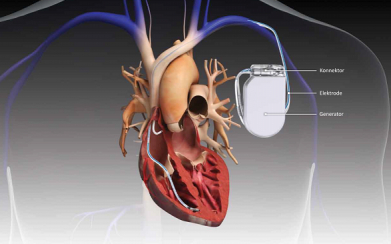 Cardiac Implants Market