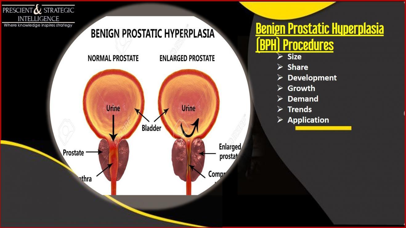 Benign Prostatic Hyperplasia (BPH) Procedures 4