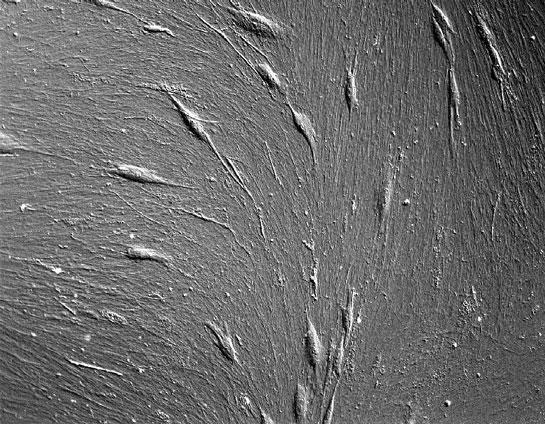 Stem cells cultured on StemBioSys CELLvo Matrix.