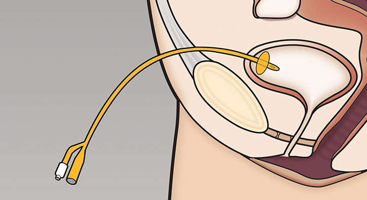 Suprapubic Catheter Market-1