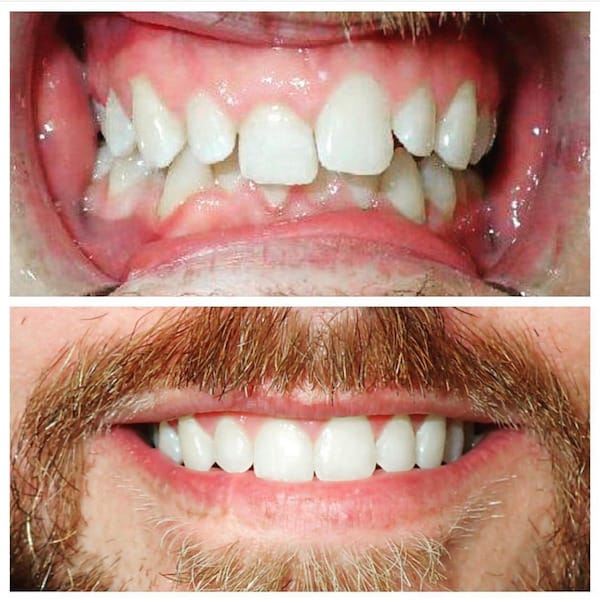 Invisalign® Before & After