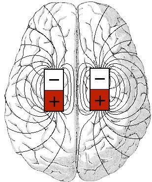 The brain has a magnetic field, coming from millions of magnetic crystals.