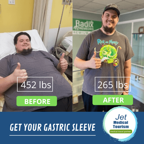 Male Gastric Sleeve Before And After Pictures