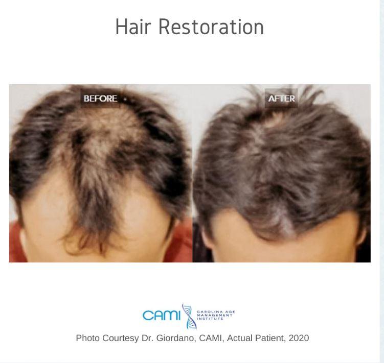 ARTAS Hair Restoration By Dr Stephen Giordano