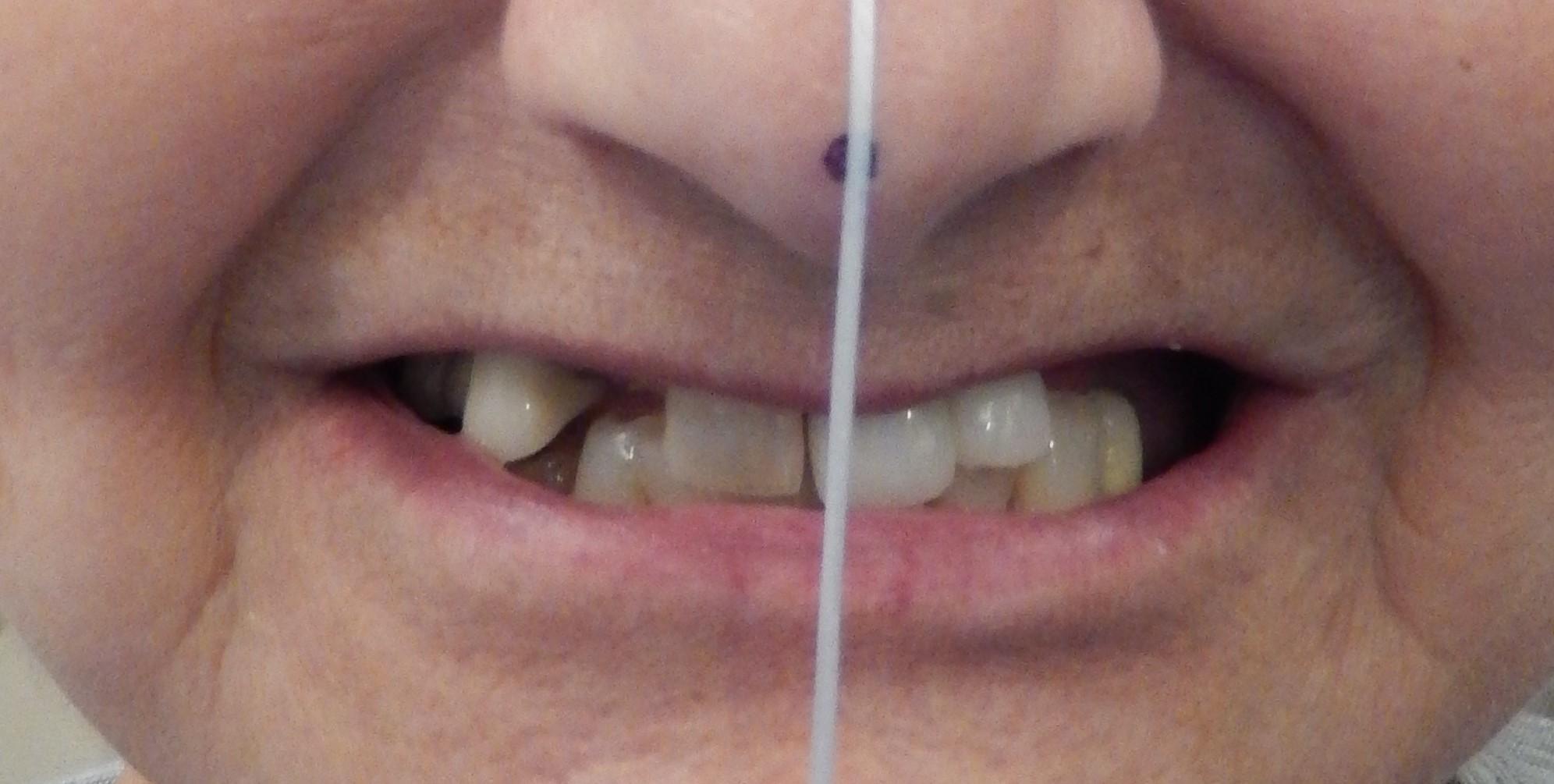 Before Natural Teeth