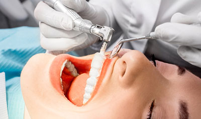 Professional Teeth Cleaning Downers Grove